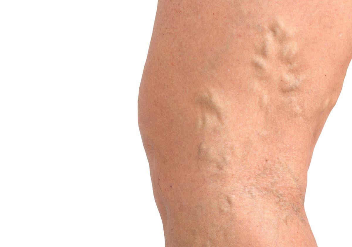 Venas gruesas - thick veins