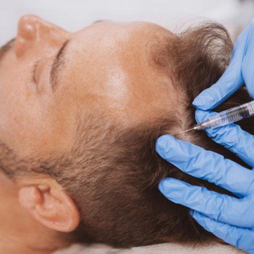 Pérdida de cabello - A natural solution for hair loss!